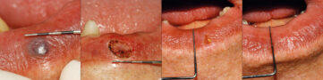 K-Laser-BLUE-DENTAL-Applications-Angioma
