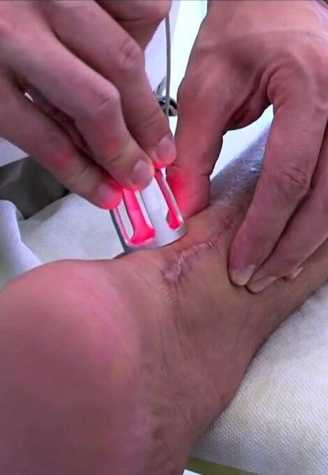 K-Laser-Physio-Treatment-min