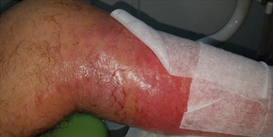 K-Laser-Vasculitis1