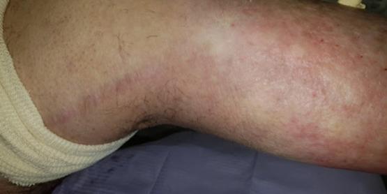 K-Laser-Vasculitis2