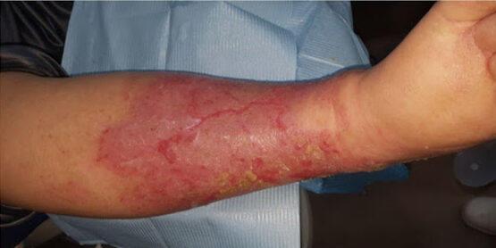 K-Laser-Vasculitis-b1